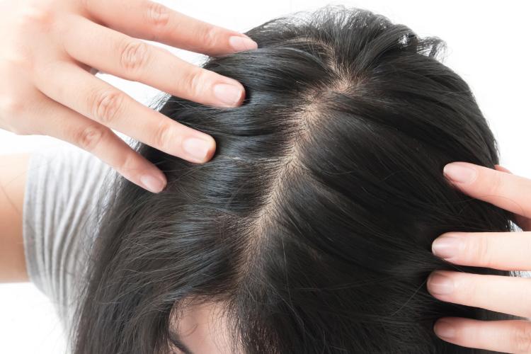 menyuburkan rambut dengan bahan alami